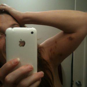 bonnie gillespie pole arm bruises